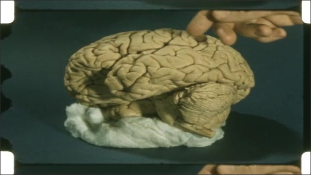 1950s: model replica of brain. Person points along top of brain.